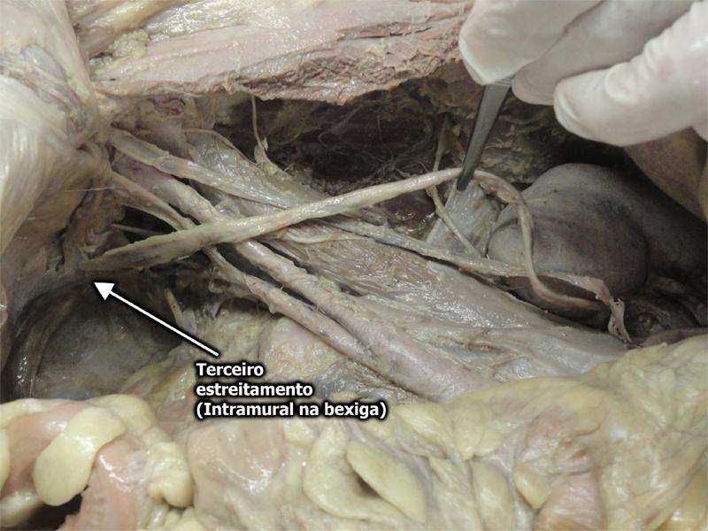 Ureter / Terceiro estreitamento