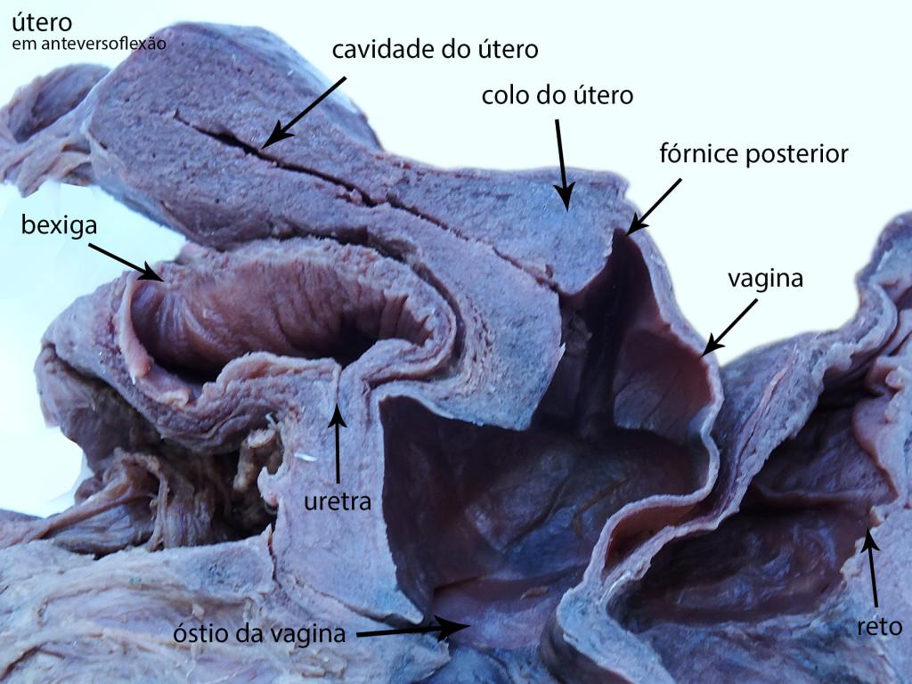 vagina-figura7