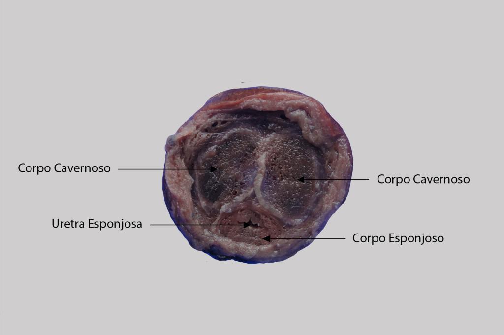 Corpo Esponjoso e Corpo Cavernoso